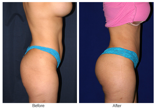 Before & After Buttock Augmentation 2 – L
