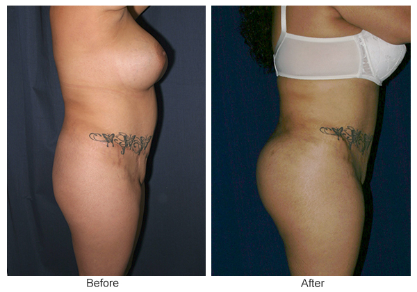 Before & After Buttock Augmentation 5 – L