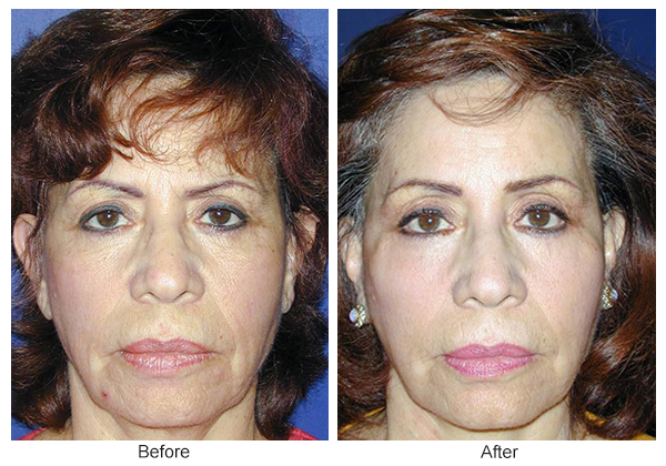Before & After Facelift 3 – F