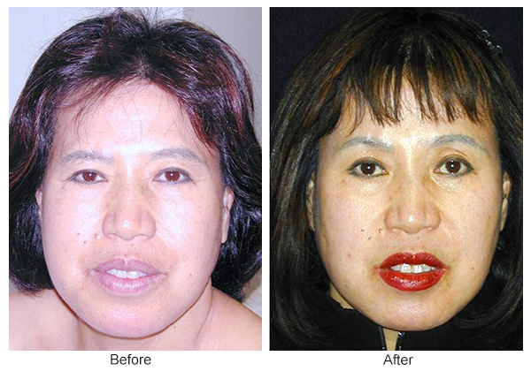 Before & After Forehead Lift 4