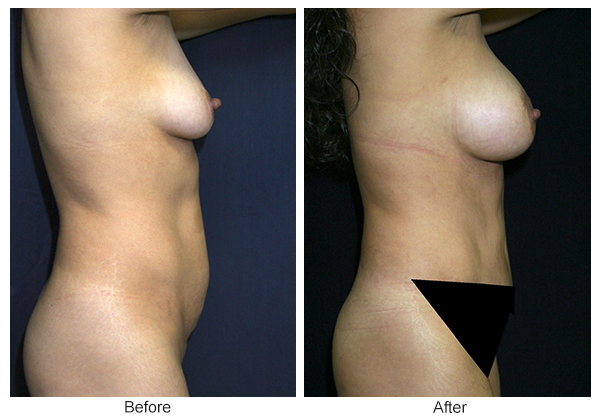 Before & After Tummy Tuck 2 – R