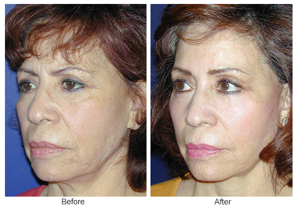 Before and After Forehead Lift 2 – LQ