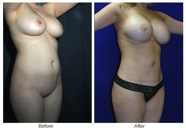 Before and After Liposuction 1 – RQ