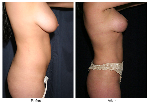 Before and After Liposuction 2