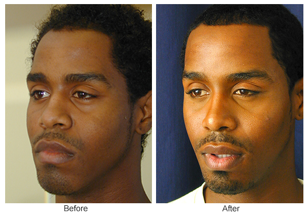 Before and After Rhinoplasty 13 – LQ