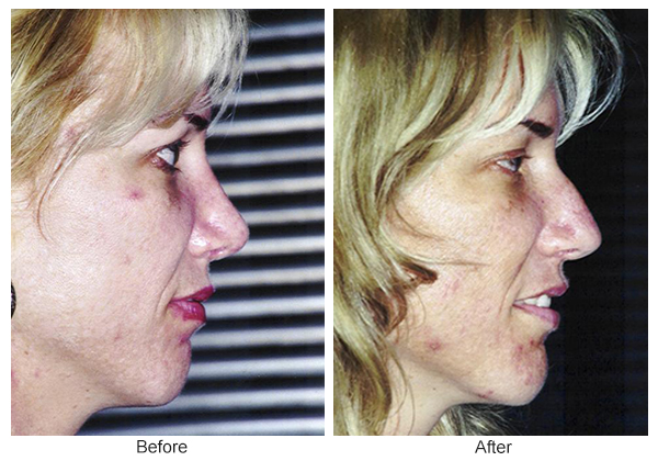 Before and After Rhinoplasty 18 – R
