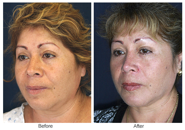 Before and After Rhinoplasty 5 – LQ