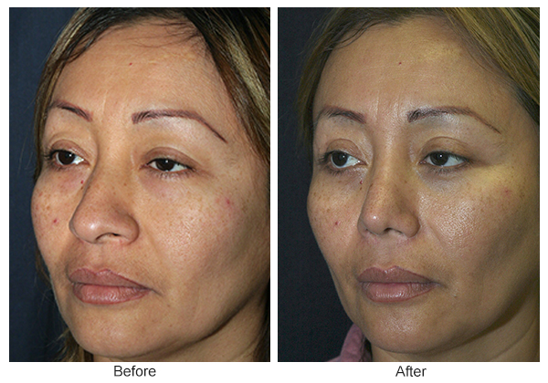 Before and After Rhinoplasty 6 – LQ