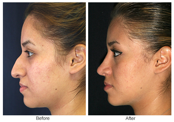 Before and After Rhinoplasty 7 – L