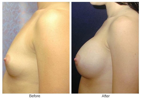 Before & After Breast Augmentation 4 – Left