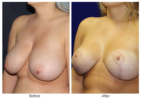 Before and After Breast Reduction 3 – LQ