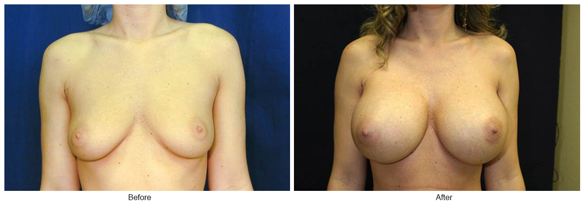 Before & After Breast Augmentation 8 – Front