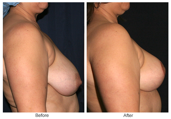 Before & After Breast Reduction 2 – Right