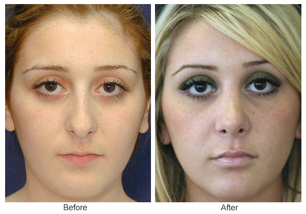 Before & After Rhinoplasty 2 – Front