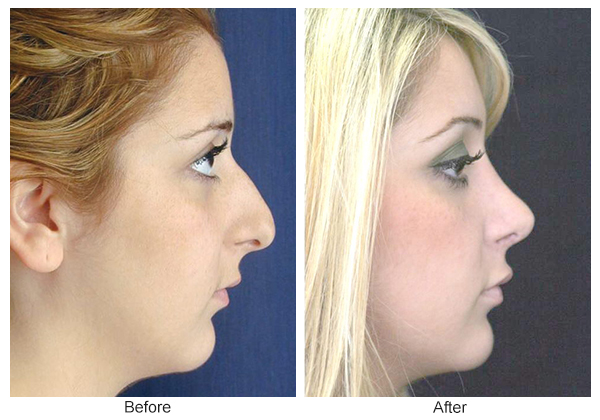 Before & After Rhinoplasty 2 – Right