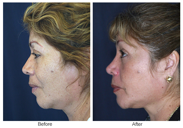 Before & After Rhinoplasty 5 – Left