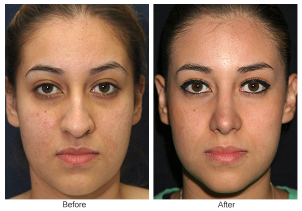 Before & After Rhinoplasty 7 – Front