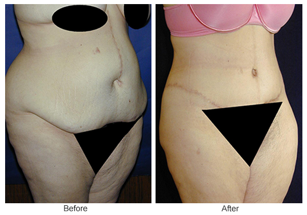 Before and After Body Lift 5 – RQ