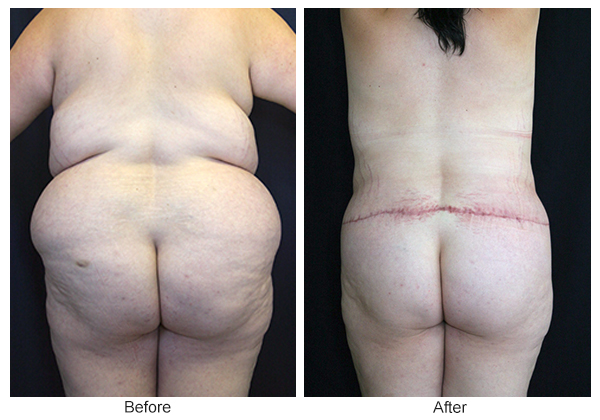 Before and After Body Lift 6 – B
