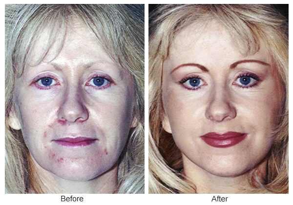 Orange County Cosmetic Surgery Clinique Before & After Facelift 5 - Front