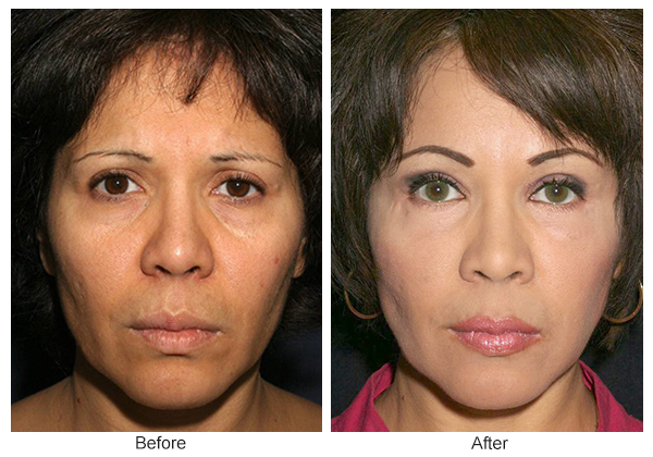 Orange County Cosmetic Surgery Clinique Before & After Facelift 8 - Front