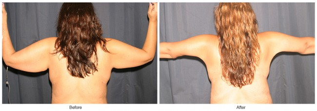 Orange County Cosmetic Surgery Clinique Before & After Arm Lift 2