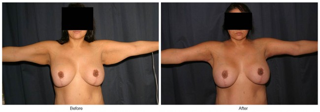 Orange County Cosmetic Surgery Clinique Before & After Arm Lift 5