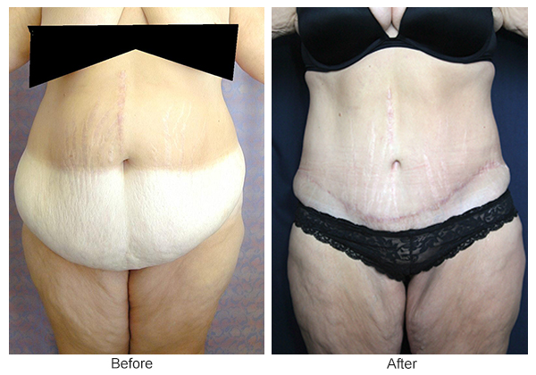 Orange County Cosmetic Surgery Clinique Before & After Body Lift 2 - Front