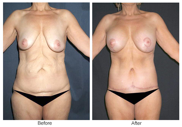 Orange County Cosmetic Surgery Clinique Before & After Body Lift 3 - Front