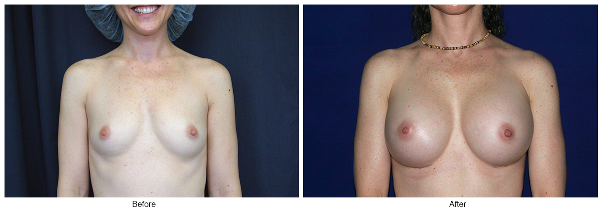 Orange County Cosmetic Surgery Clinique Before & After Breast Augmentation 1 - Front