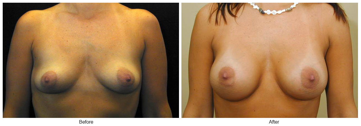 Orange County Cosmetic Surgery Clinique Before & After Breast Augmentation 6 - Front