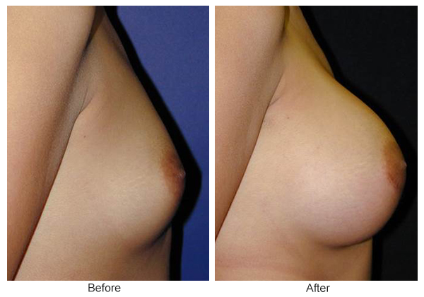 Orange County Cosmetic Surgery Clinique Before & After Breast Augmentation 7 - Right