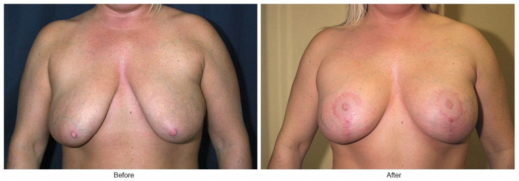 Orange County Cosmetic Surgery Clinique Before & After Breast Lift 1 - Front