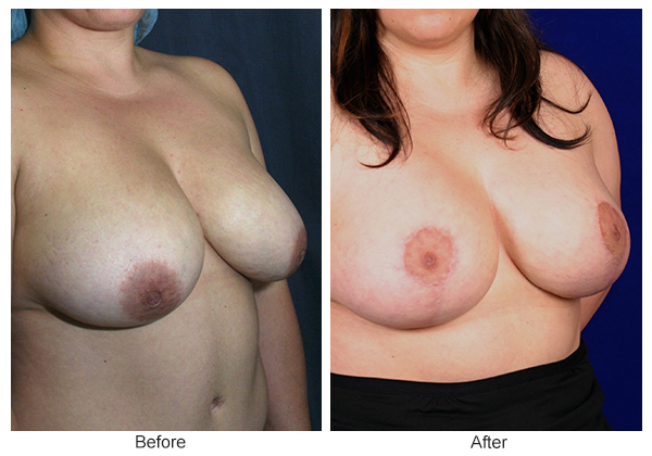 Orange County Cosmetic Surgery Clinique Before & After Breast Lift 11 - Right Quarter