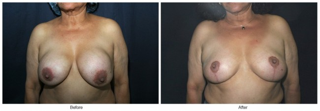 Orange County Cosmetic Surgery Clinique Before & After Breast Lift 12 - Front