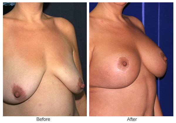 Orange County Cosmetic Surgery Clinique Before & After Breast Lift 13 - Right Quarter