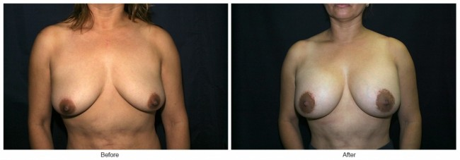 Orange County Cosmetic Surgery Clinique Before & After Breast Lift 3 - Front