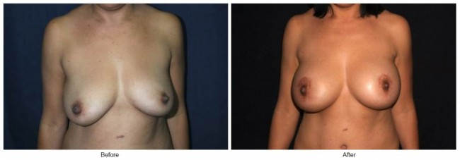 Orange County Cosmetic Surgery Clinique Before & After Breast Lift 4 - Front