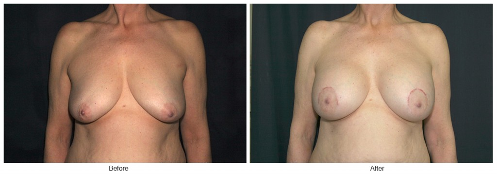 Orange County Cosmetic Surgery Clinique Before & After Breast Lift 5 - Front