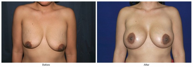 Orange County Cosmetic Surgery Clinique Before & After Breast Lift 7 - Front