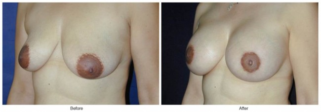 Orange County Cosmetic Surgery Clinique Before & After Breast Lift 9 - Left Quarter