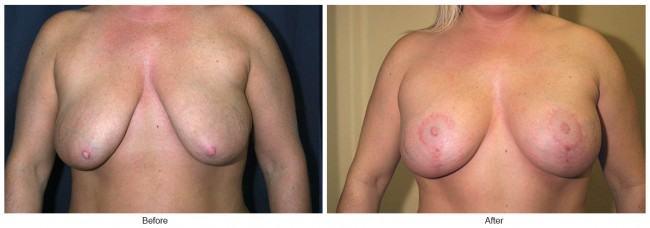 Orange County Cosmetic Surgery Clinique Before & After Breast Reduction 6 - Front