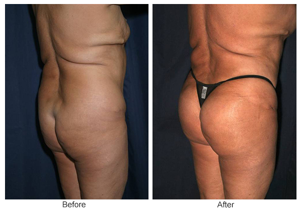 Orange County Cosmetic Surgery Clinique Before & After Buttock Augmentation 7 - Left Quarter