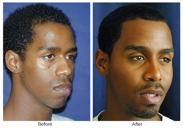 Orange County Cosmetic Surgery Clinique Before & After Cheek Implant 3