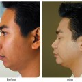 Orange County Cosmetic Surgery Clinique Before & After Chin Implant 3