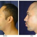 Orange County Cosmetic Surgery Clinique Before & After Chin Implant 4