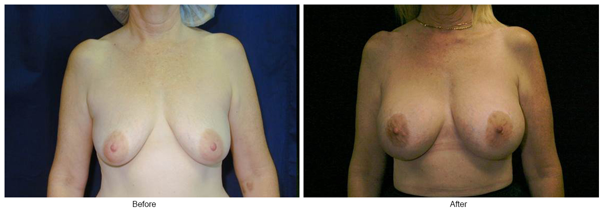 Orange County Cosmetic Surgery Clinique Before & After Crescent Lift 1 - Front