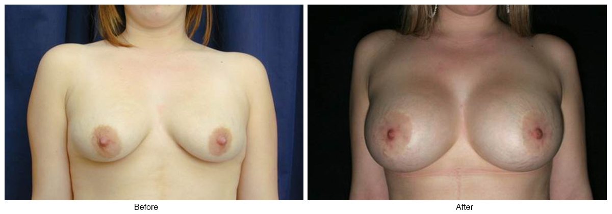Orange County Cosmetic Surgery Clinique Before & After Crescent Lift 5 - Front