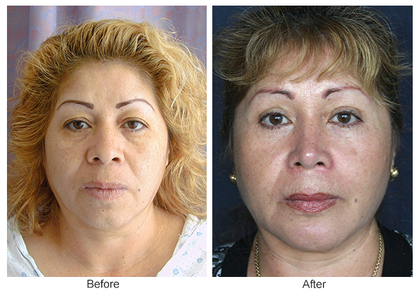 Orange County Cosmetic Surgery Clinique Before & After Eyelid Surgery 1
