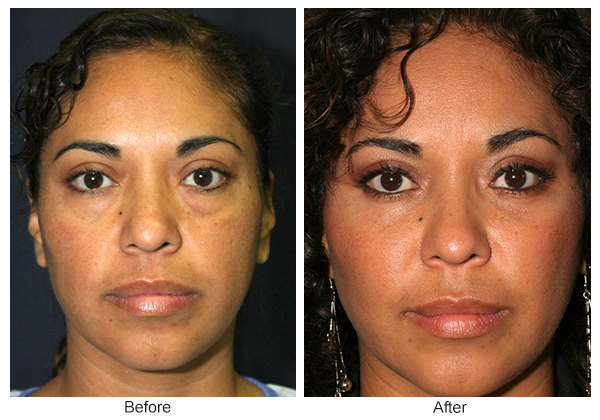 Orange County Cosmetic Surgery Clinique Before & After Eyelid Surgery 2